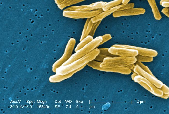 Mycobacterium tuberculossis