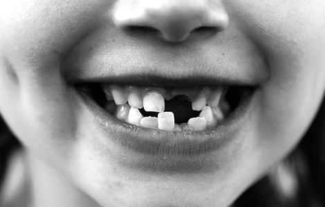 Najlepšie a najhoršie jedlá pre vaše zuby - úvod